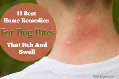 11 Best Home Remedies for Bug Bites That Itch and Swell