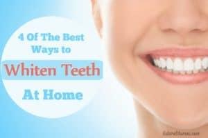 Best Ways to Whiten Teeth at Home
