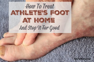 How to Treat Athlete's Foot at Home and Stop It for Good