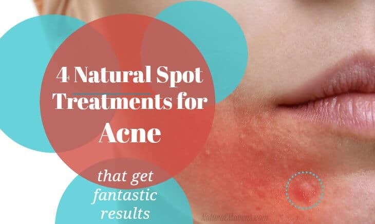 4 Natural Spot Treatments for Acne That Get Fantastic Results