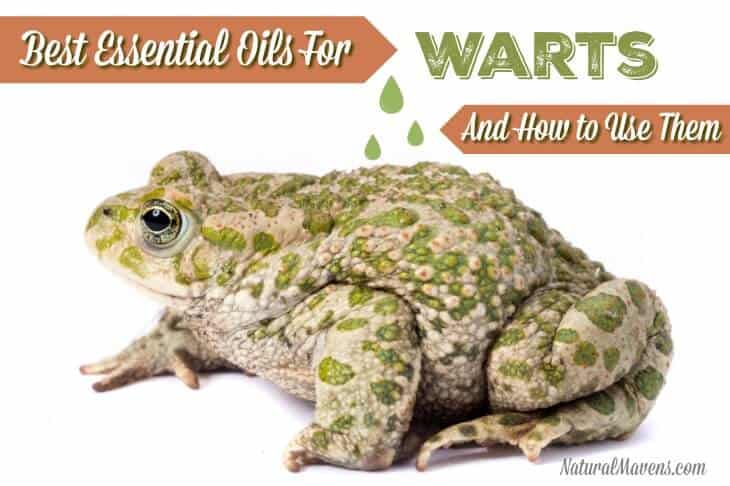 Best Essential Oils for Warts